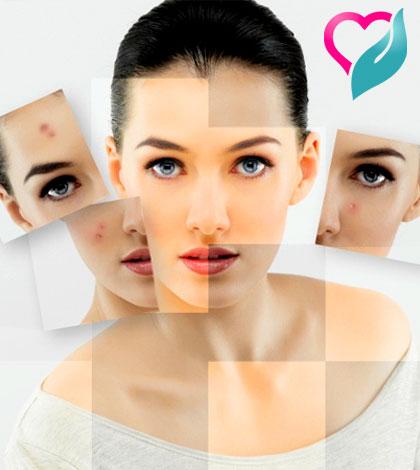 Anti-Acne
