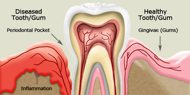 Gums growing over teeth