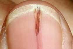 Splinter hemorrhages