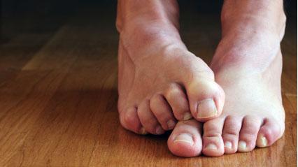 cramped foot