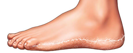 Dry, flaky skin on foot