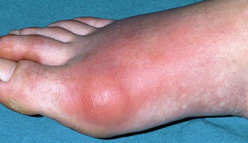 Sore toe feet
