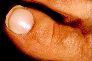 white nail feet