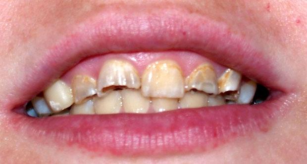 cracking teeth