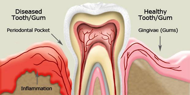 Gums growing over teeth