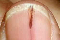 Splinter hemorrhages