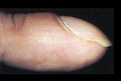 clubbed nail