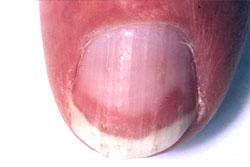 terry's nail