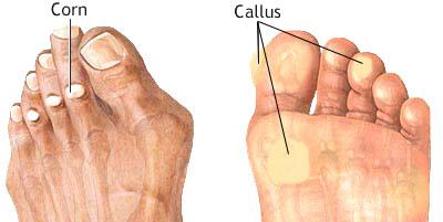 Corns and Callus
