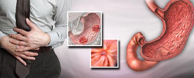 ulcer diagrams