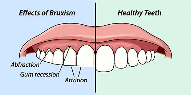 bruxism of teeth