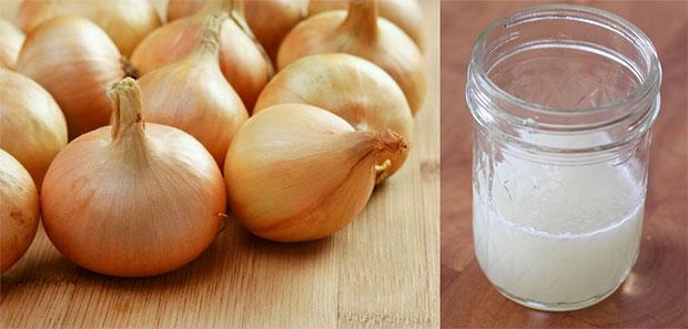 onion juice burns