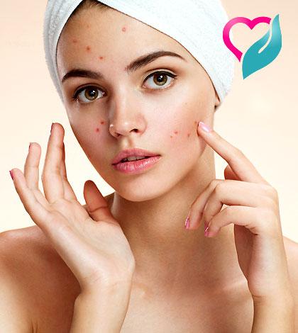 Acne & pesky Pimples